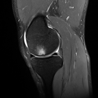 Focal Osteochondral Femoral Condyle Injury