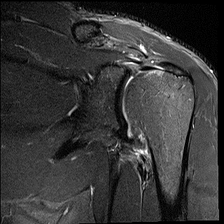 capsulitis (frozen shoulder) can be be a very painful and debilitating condition, which we need to treat earlier with hydrodilatation and rehabilitation
